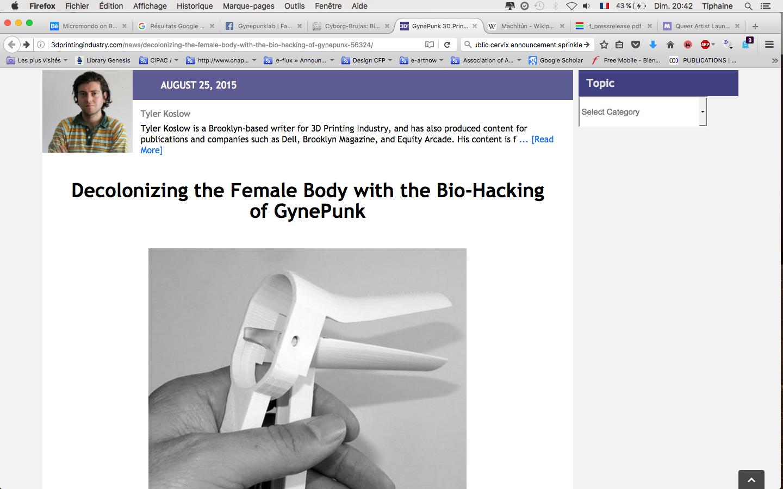 gyne@3Dprinting industry